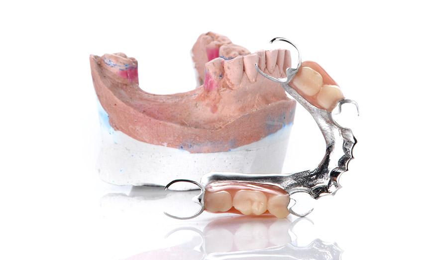 Pose de prothèse dentaire partielle amovible dans Lanaudière - Denturologiste Sylvain Perreault à Joliette