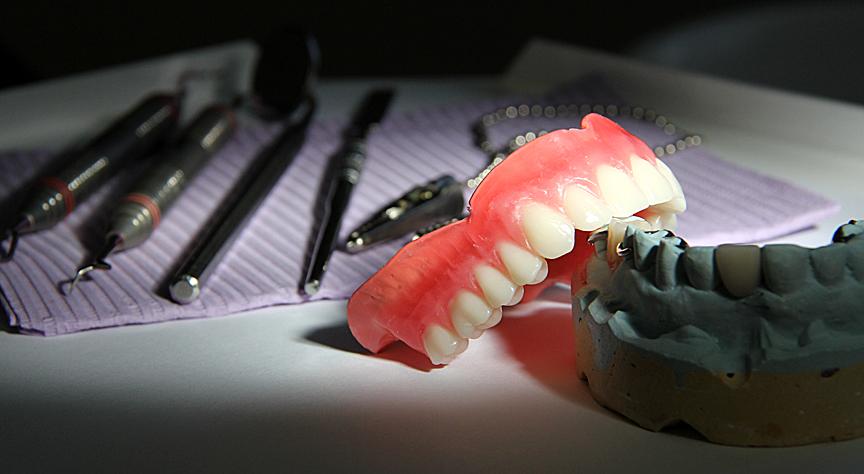 Pose de prothèse dentaire complète amovible à Joliette et ses environs - Denturologiste Sylvain Perreault à Joliette