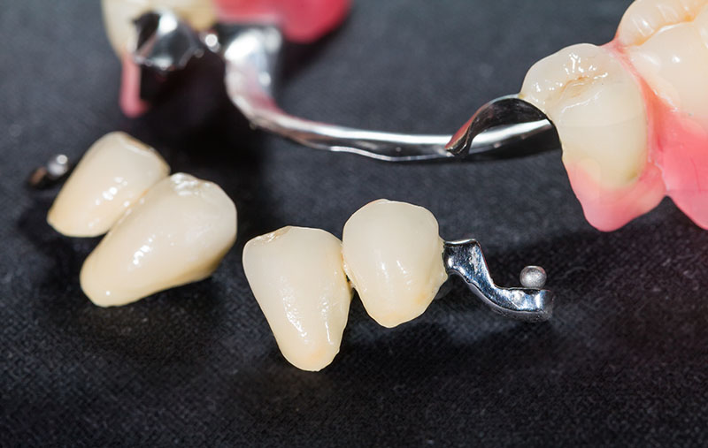 Pose de prothèse dentaire partielle amovible à Joliette et ses environs - Denturologiste Sylvain Perreault à Joliette