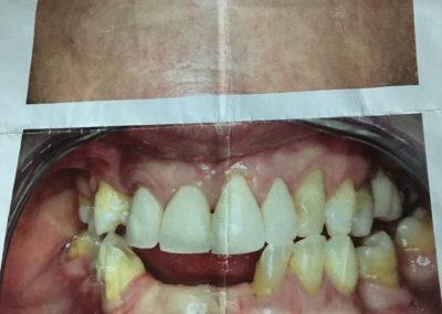 Pose de prothèse amovible à Joliette - Denturologiste Sylvain Perreault à Joliette