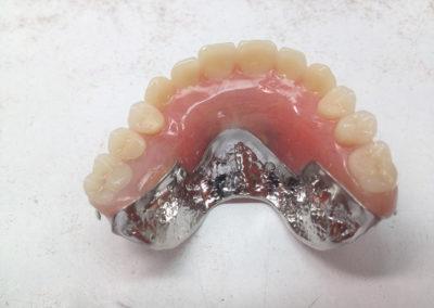 Pose d'implant dentaire à Joliette - Denturologiste Sylvain Perreault à Joliette