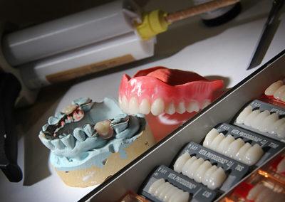 Prothèse dentaire complète amovible à Joliette - Denturologiste Sylvain Perreault à Joliette
