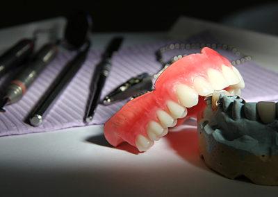 Prothèse dentaire dans Lanaudière - Denturologiste Sylvain Perreault à Joliette