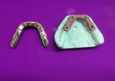 Prothèse dentaire sur implant à Joliette - Denturologiste Sylvain Perreault à Joliette