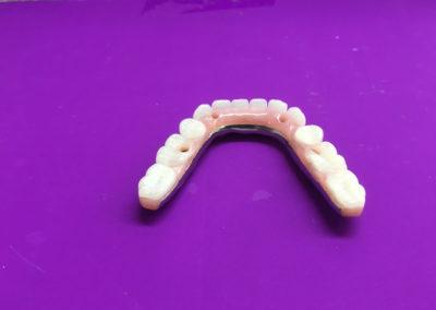 Prothèse dentaire sur implant dans Lanaudière - Denturologiste Sylvain Perreault à Joliette