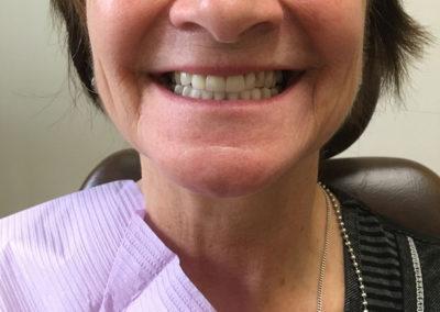 Prothèse dentaire sur implant à Rawdon - Denturologiste Sylvain Perreault à Joliette